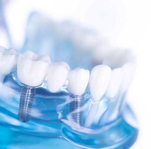 Dental Implants in Independence, MO - Meiners Dentistry